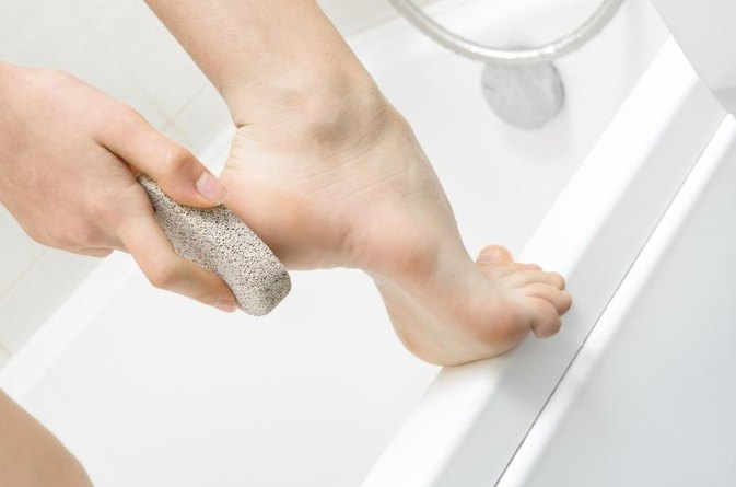 How to Remove Corns and Calluses on Toes