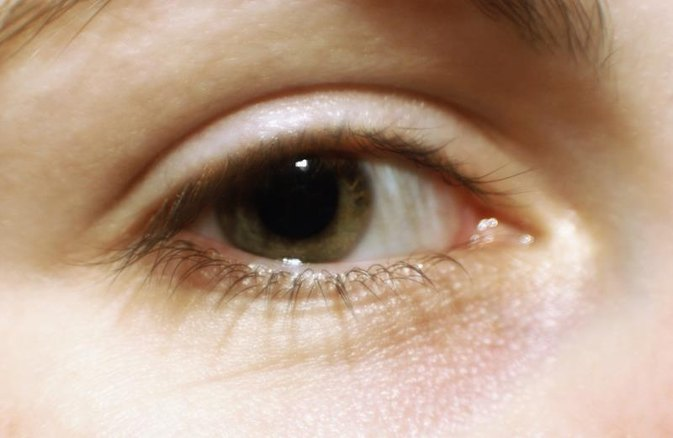 Eyelash Loss Causes