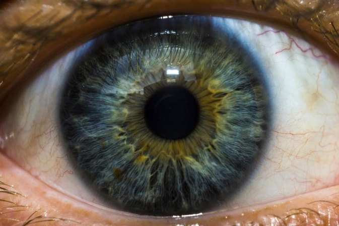 Spots in a Person's Eye