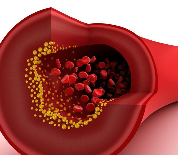 Can You Have Blocked Arteries With Low Cholesterol?