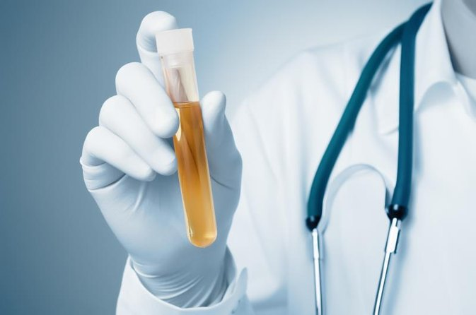 High Levels of Potassium in Urine