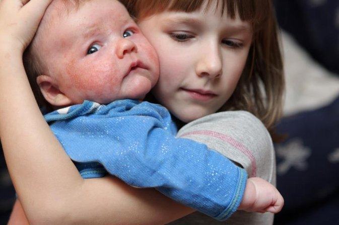 Redness on the Face in Children