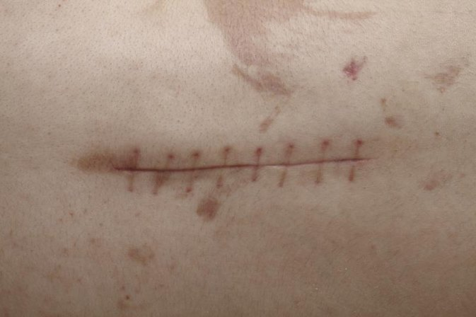 How to Treat Scars After Surgery
