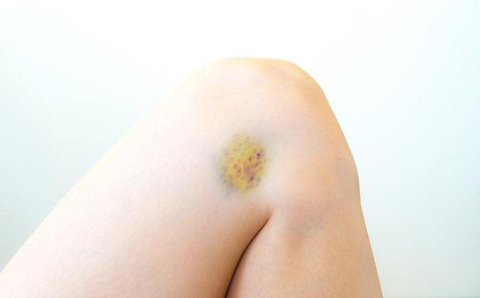 What You Need to Know About a Bone Bruise
