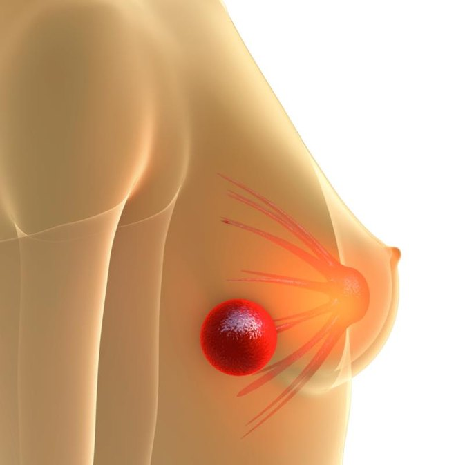 Characteristics of Breast Cancer Lumps