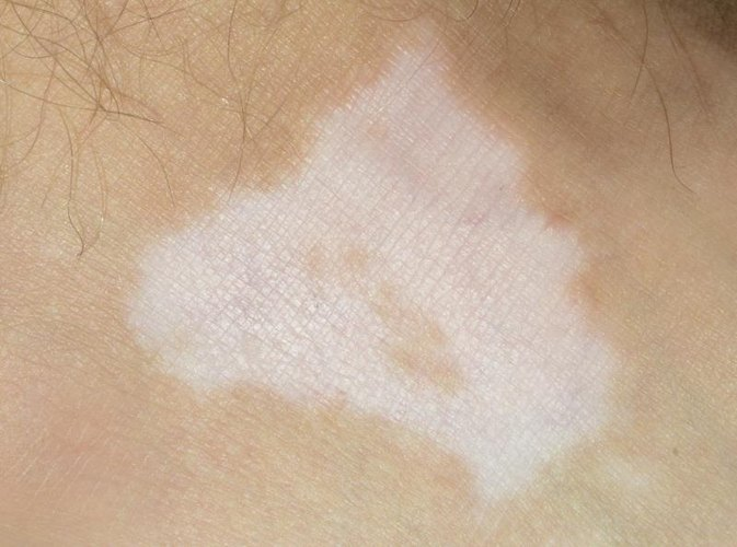 Skin Disorders That Cause Pigment Loss