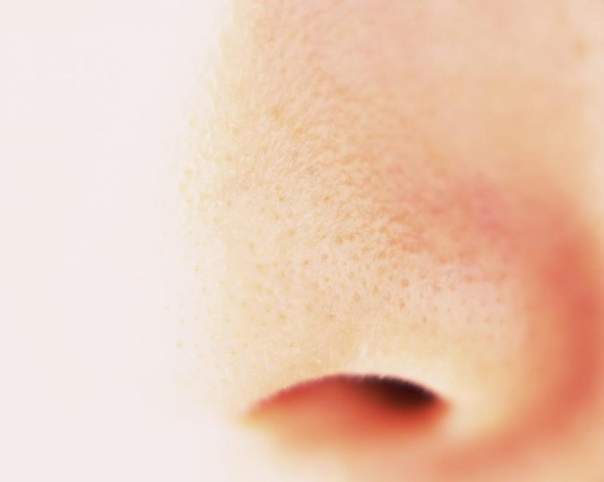 ENT Blogs: GRANULOMATOUS DISEASES OF NOSE