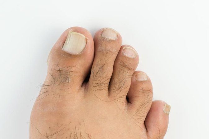 Long ugly toenails
