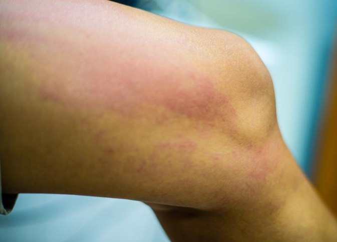 Can a Food Allergy Cause Rashes on Your Buttocks & Inner Thighs?