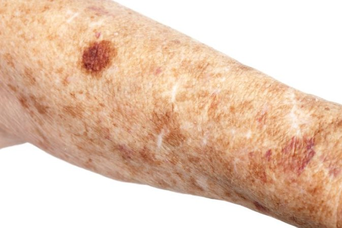 How To Remove Liver Spots Naturally