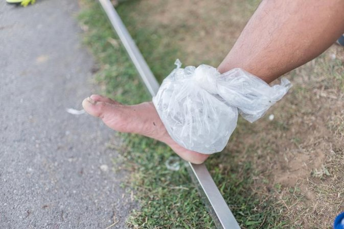 How to Alternate Ice and Heat for Sore Muscles