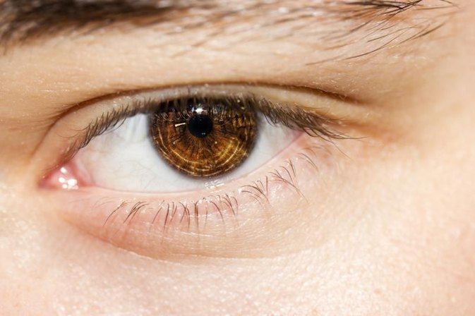 How to Diagnose Puffy Eyelids That Won't Go Away