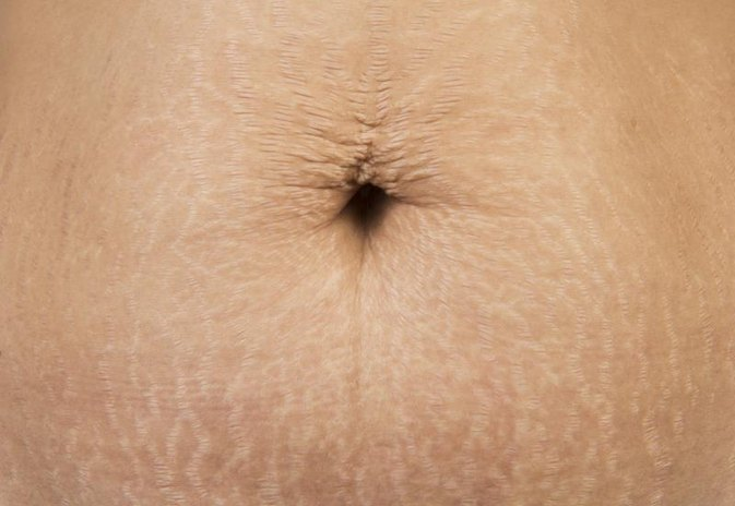 Can You Remove Stretch Marks With Bleaching Cream?