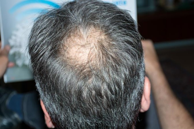 Causes of Adult Acne and Hair Loss