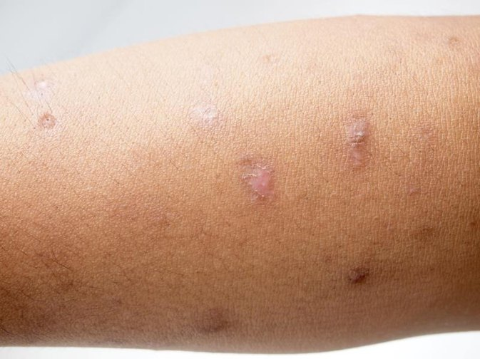 How to Get Rid of Scars From Hives