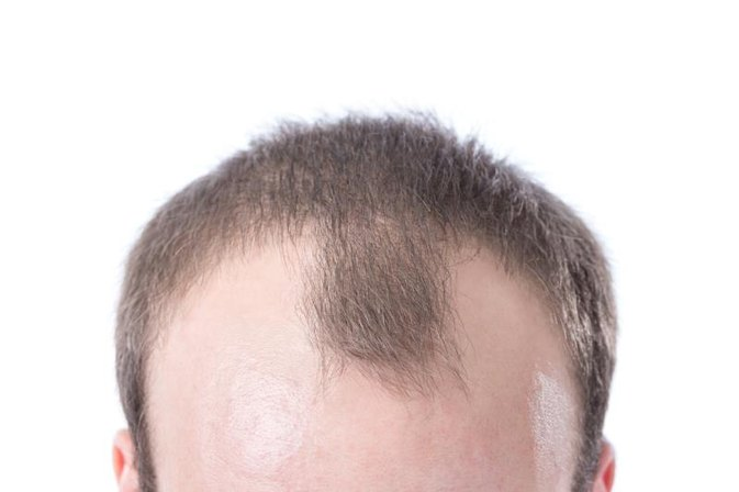 How to Use Saw Palmetto Berry Extract for Hair Loss