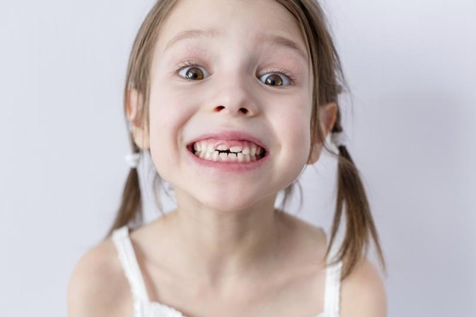 Does a Baby Tooth Need to Be Extracted When It Is Loose?
