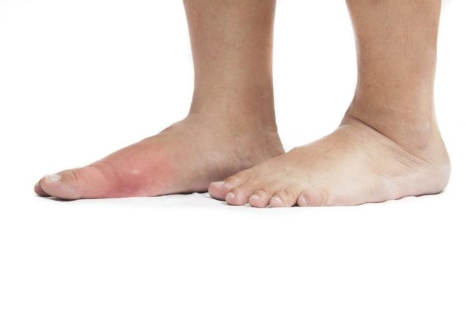 what food uric acid can you get gout in both big toes foods to eat to avoid uric acid
