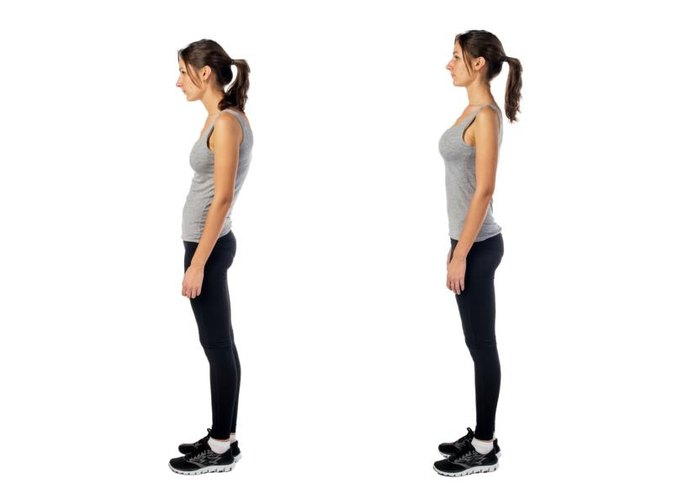 About Kyphoscoliosis Syndrome | LIVESTRONG.COM