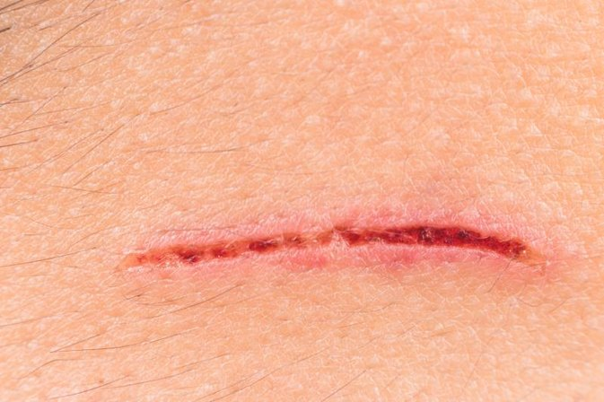 How to Reduce Scars With Supplements