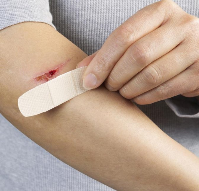 How to Prevent Scarring From Cuts