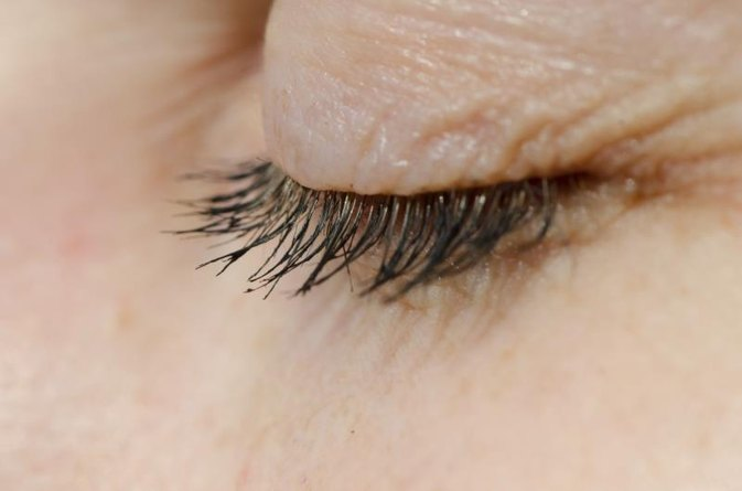 What Causes the Eyelid to Wrinkle?