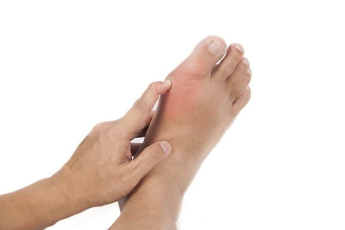 gout great toe x ray patanjali ayurvedic treatment for gout acute gout big toe