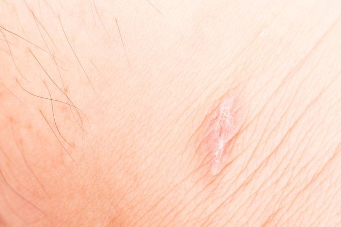 How to Flatten Keloid Scars