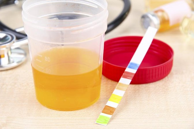 How to Interpret Dipstick Urinalysis Results