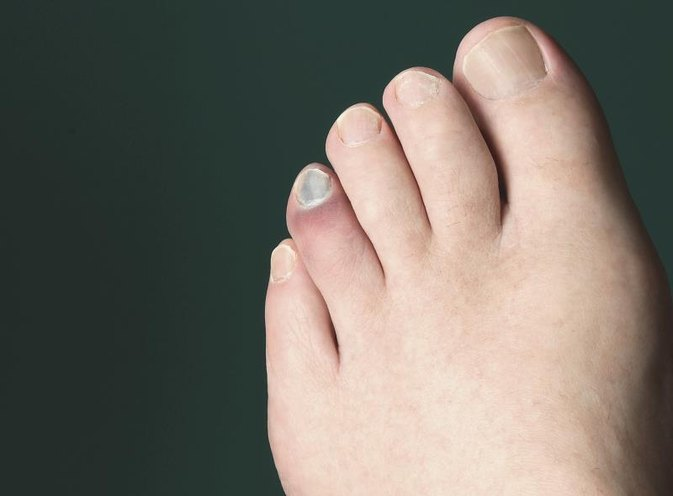 How to Help Heal a Broken Toe