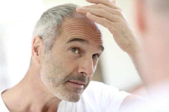 How to Prevent Hair Loss With Lamictal