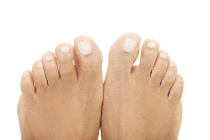 How to Cure Yellow, Thick Nails