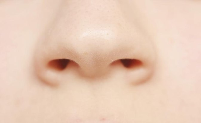 Dry Flaky Skin Around Nose & Corners of Mouth