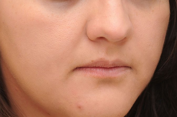 How to Get Rid of Popped Zits Fast