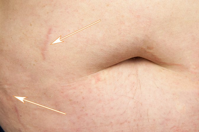 How to Lighten Stretch Marks