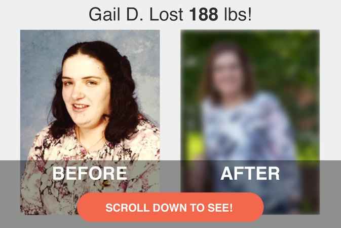 How a Heart Attack Scare Inspired Gail to Lose 188 Pounds