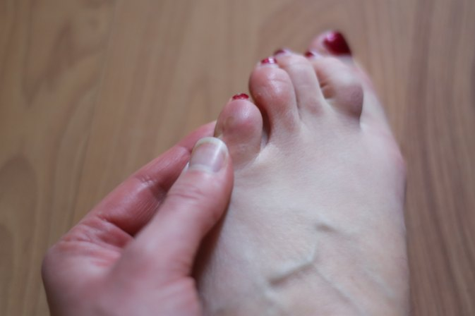 How to Avoid Calluses From Running