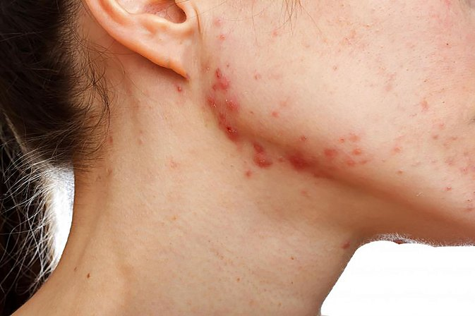 Best Topical Treatments for Acne Scars