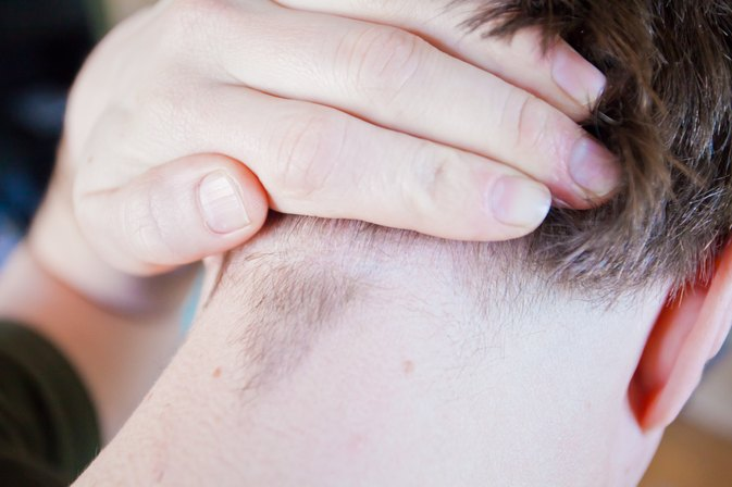 how to treat ingrown hairs on the scalp livestrongcom