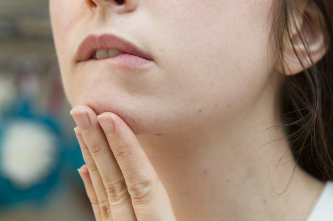 How to Clear Chin Acne