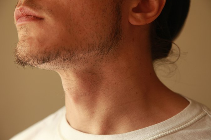 How to Get Rid of Ingrown Hairs on the Neck
