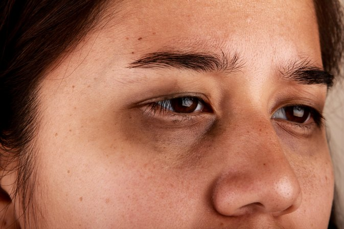 What to Eat to Get Rid of Dark Circles