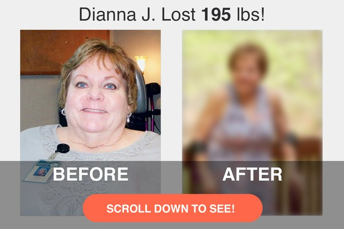 How Dianna J. Lost 195 Pounds After Her Retirement