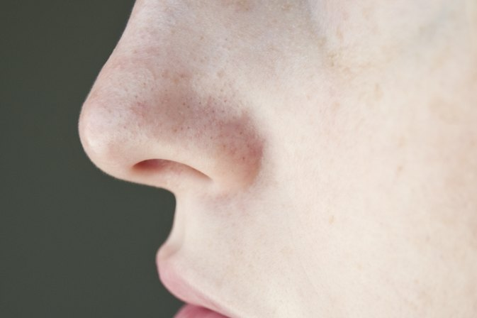 How to Remove Clogged Pores on the Nose