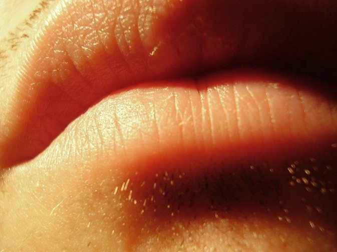 How to Get Rid of a Cold Sore Scab