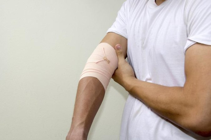 The Best Pain Killers for Tennis Elbow