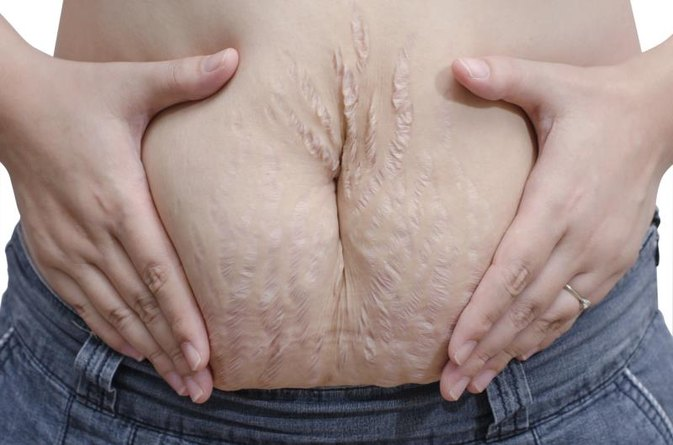 How to Stop Pain From Stretch Marks After Birth