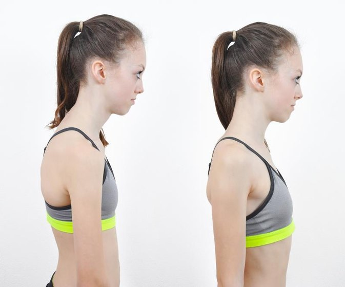 Bad Posture in Children