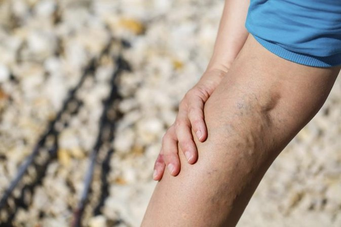 The Signs & Symptoms of Vascular Problems in the Legs