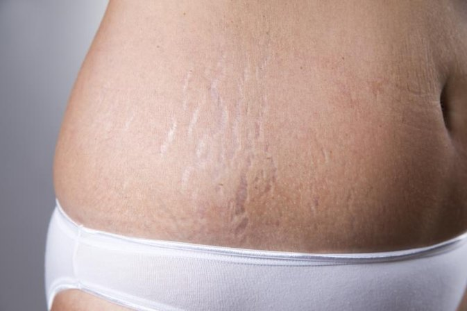 Can Toning Up Your Body Get Rid of Stretch Marks?